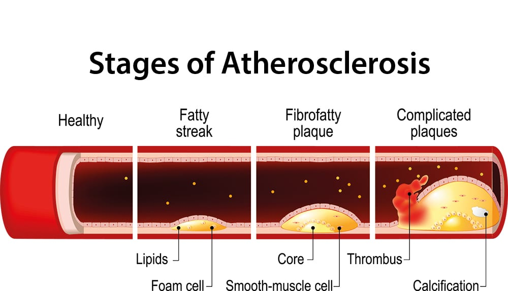 Stages of atherosclerosis infograph.