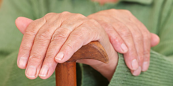 Elderly arthritis hands.