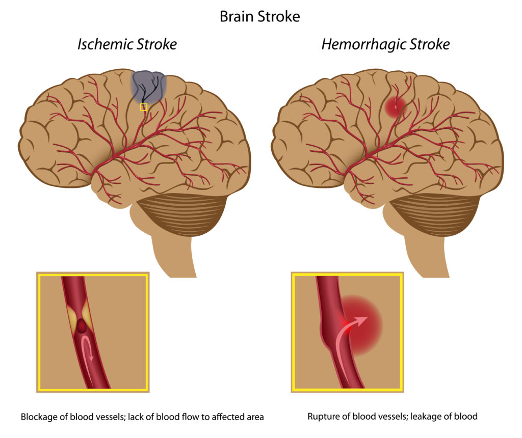 Info-graph detailing the two different types of strokes.